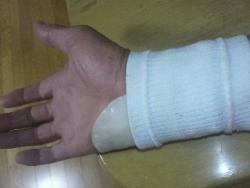 手首の固定