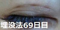 69days1.jpg