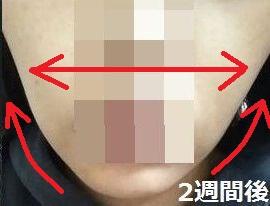 顔痩せクイックブログ