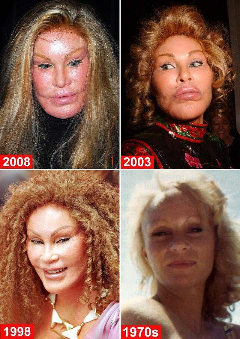 ジョセリン・ウィルデンシュタイン夫人の顔面変遷