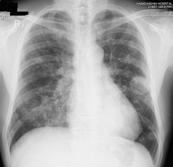 肺がん Xp