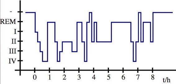 Hypnogrammの一例 図