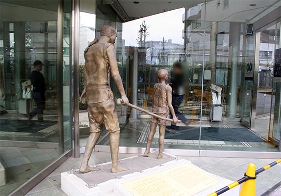 オンコセルカ症の大人を杖で引いて歩く子供の像