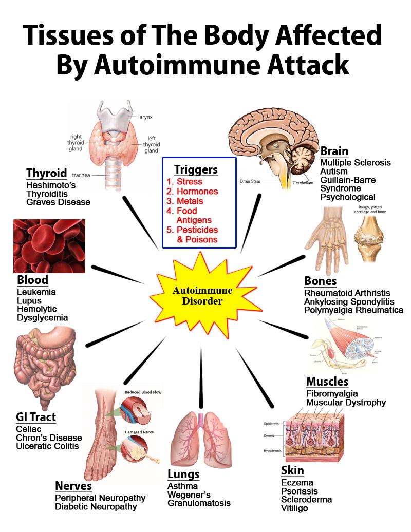 autoimmune_attack_graphic.jpg