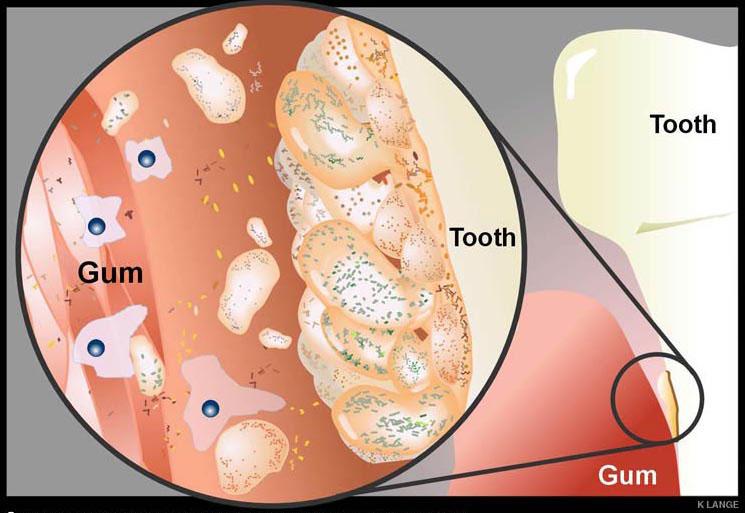 dentalinflammation.jpg