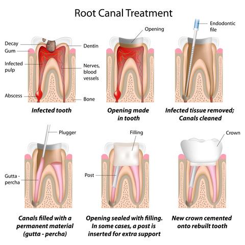 endodontics2.jpg