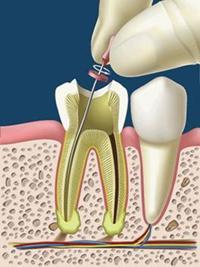endodonzia.jpg