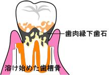 enkasiseki_2.jpg