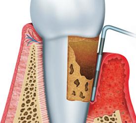 periodontitis-diagram.jpg