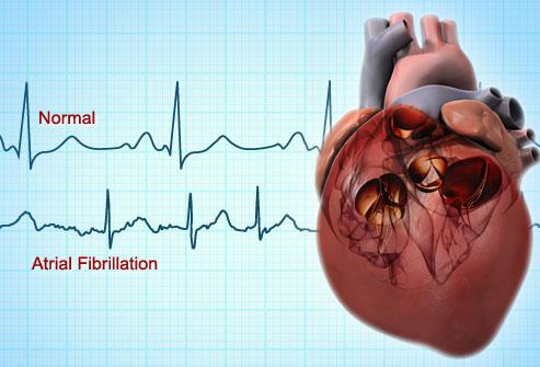webmd_rf_photo_of_atrial_fibrillation.jpg