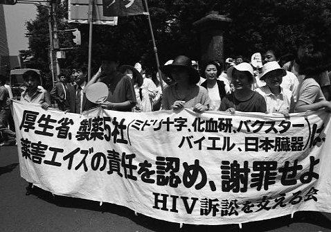 エイズ訴訟