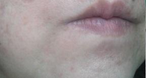 ナールスネオ 今日の頬