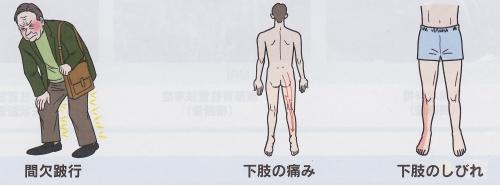 腰部脊柱管狭窄症症状