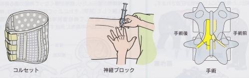 腰部脊柱管狭窄症治療