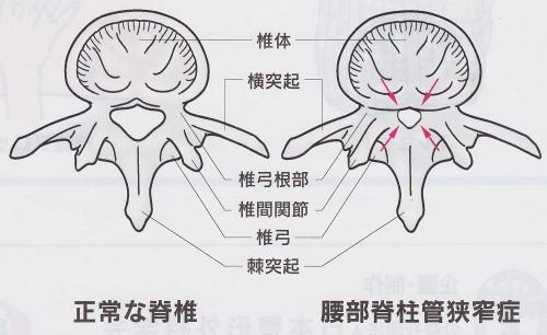 腰部脊柱管狭窄症病態