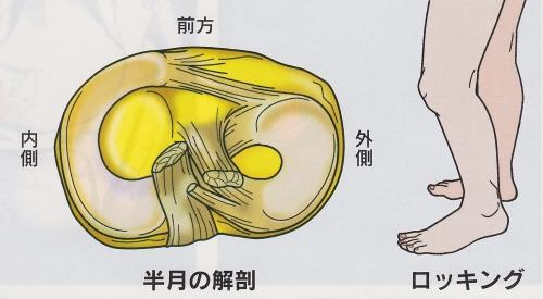 半月[板]損傷症状