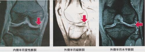 半月[板]損傷診断