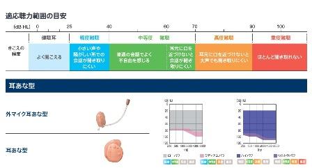 補聴器 耳穴型