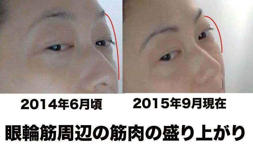 眼輪筋比較図3