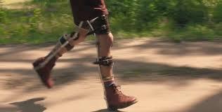 leg braces Forrest Gump