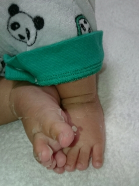 足の皮アップ