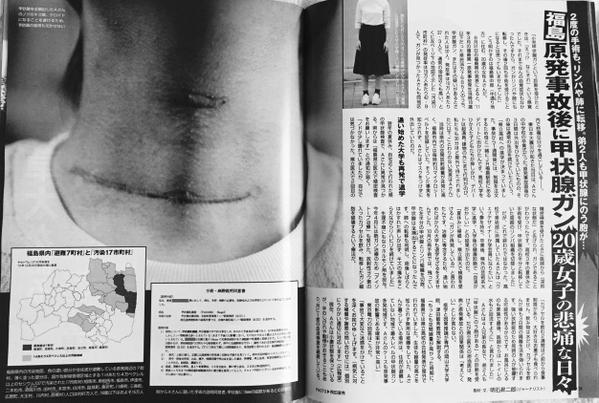 CO04od8UsAAXuKA甲状腺ガン