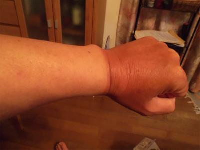 8.23日焼けの手